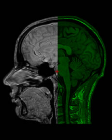 UCL Brain Image